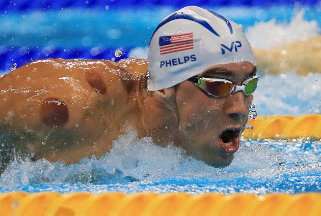 MIchael Phelps dan bekas bekam